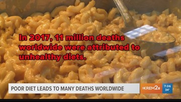 Poor Diets Killing More People Than Tobacco High Blood Pressure Uw Study Says