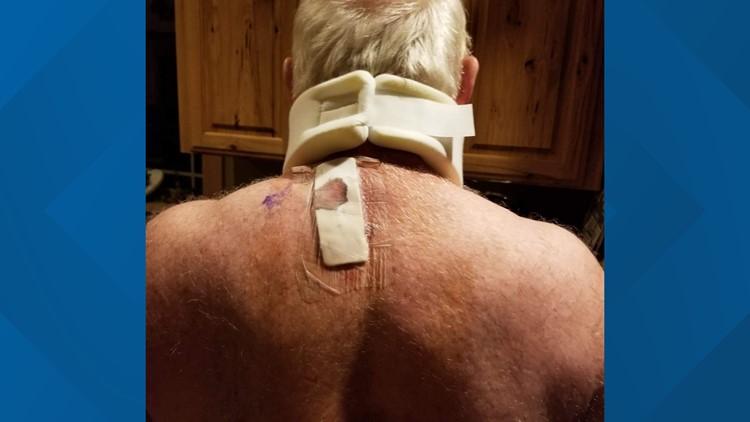 Monte's injury