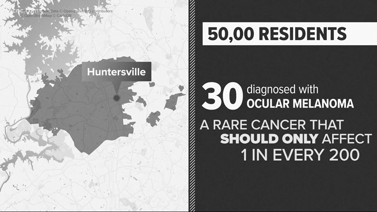 huntersville ocular melanoma cancer