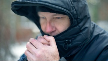Explainer: Wind chill and why it hurts your face