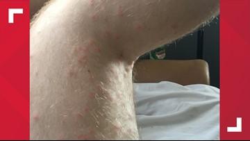 'It's Disgusting I Still Feel Them Crawling.' Hundreds of Baby Ticks Ambush Man Walking in Guilford County, NC